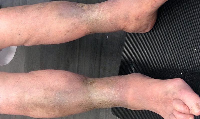 Vénás elégtelenség okozta sebek 7.. kép