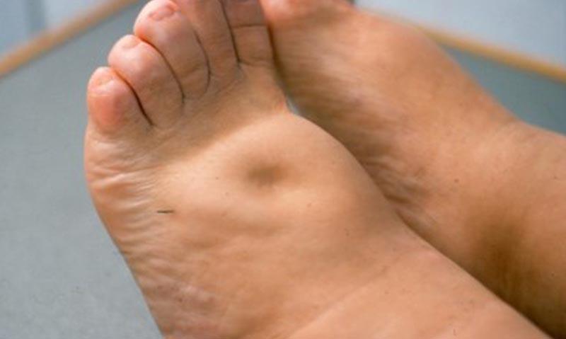 A cipószerűen duzzadt láb tartja az ujjbenyomatot.