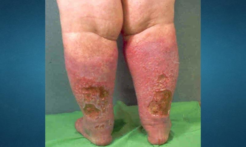 Nyirokcsorgás (lymphorrhoea)