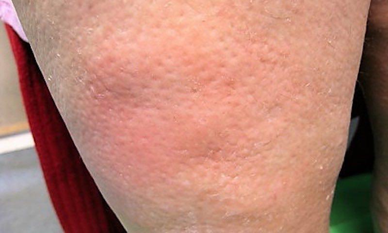 """A nyiroködémás lábszár bőre a narancs felszínéhez, a """"narancshéjhoz"""" hasonlít"""