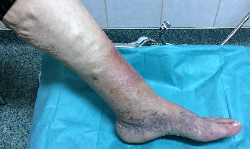 az alsó lábszáron vörös foltok viszketnek