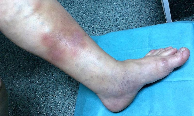Vénás elégtelenség okozta sebek 2. kép