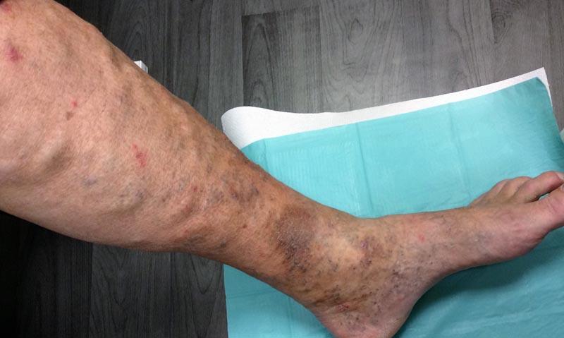 Vénás elégtelenség okozta sebek 3. kép