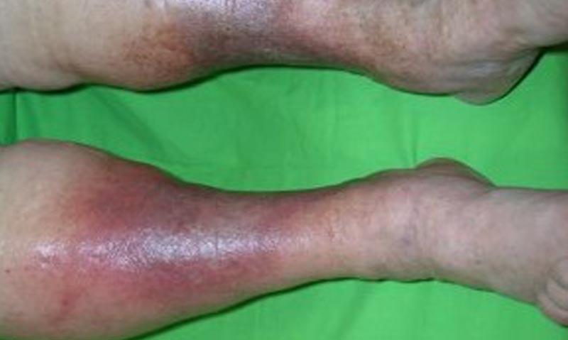 Vénás elégtelenség okozta sebek IV.