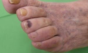 Cukorbeteg láb 02