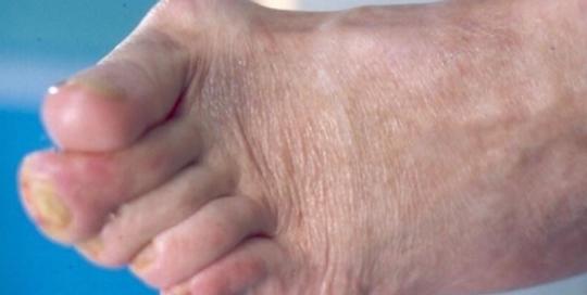 Cukorbeteg láb 04