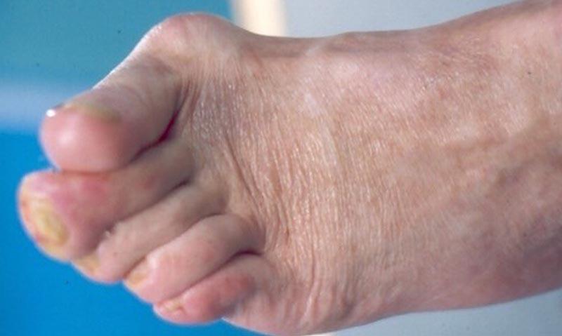 Cukorbeteg láb IV.