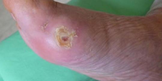 Cukorbeteg láb 05