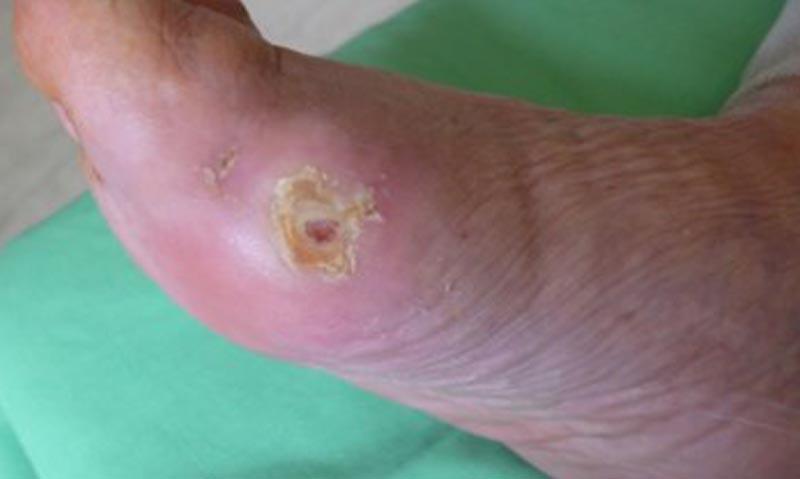 Cukorbeteg láb V.