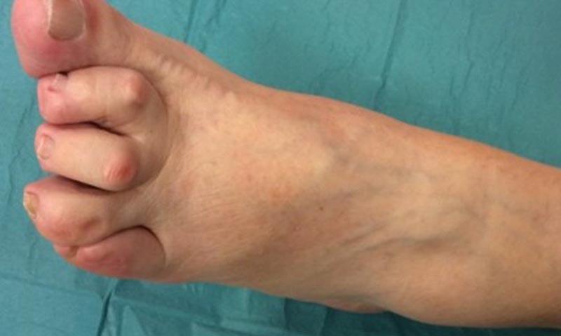 Cukorbeteg láb VI.
