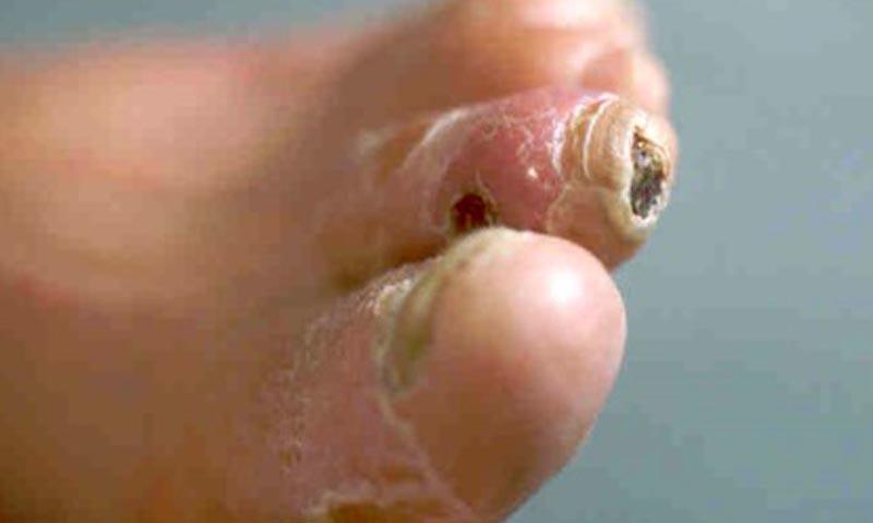 Cukorbeteg láb 07