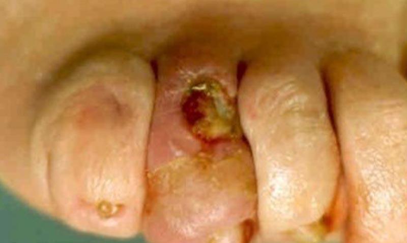Cukorbeteg láb VIII.