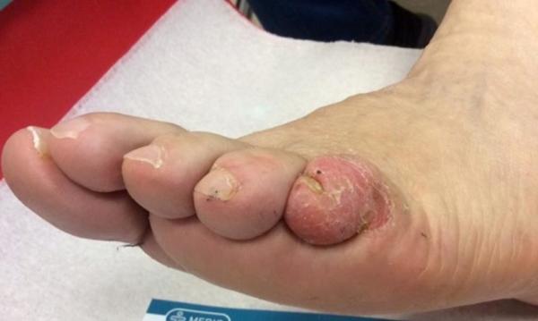 Cukorbeteg láb 09