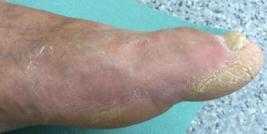 Cukorbeteg láb 10