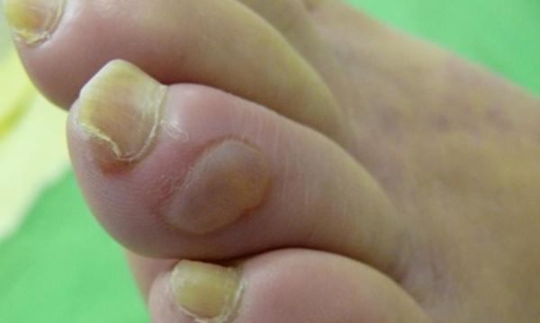 Cukorbeteg láb 11