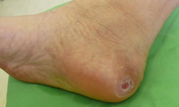 Cukorbeteg láb 14
