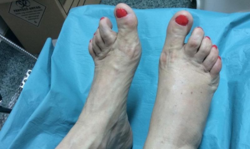 Cukorbeteg láb 15