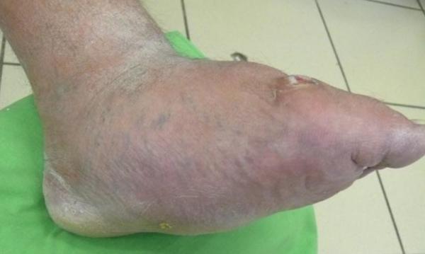 Cukorbeteg láb 16