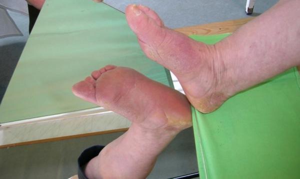 Cukorbeteg láb 18