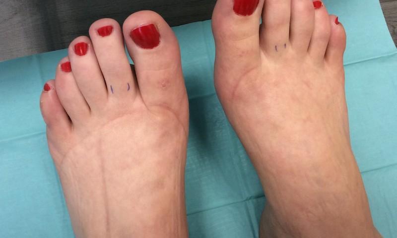 vörös foltok a lábujjakon, mint kezelni