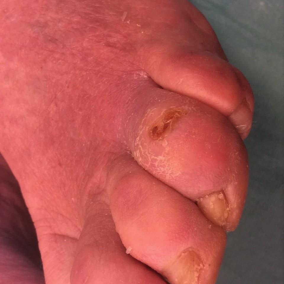 Cukorbeteg lába. A IV. ujj feszítő felszínén, a kóros lábtartás (neuropátia) miatt kóros nyomáspont, seb alakult ki