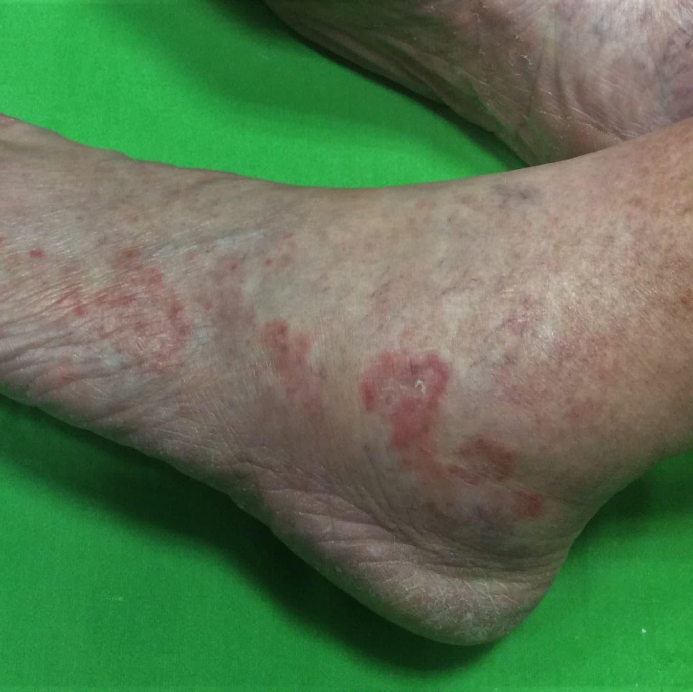 A bal lábon, a külső talpélen gombás folyamat alakult ki.
