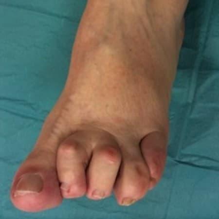 A cukorbetegeknél az ujjak kóros tartása alakul ki, amelyeket kalapácsujjnak neveznek. A kóros tartás miatt (neuropátia) az izületek felett a bőr nyomódik, seb is kialakulhat.