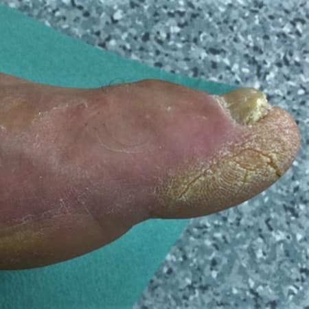 Cukorbeteg láb. A bal láb I. ujján bőrkeményedés keletkezett a kóros nyomás miatt. A vaskos szarumassza berepedezett.