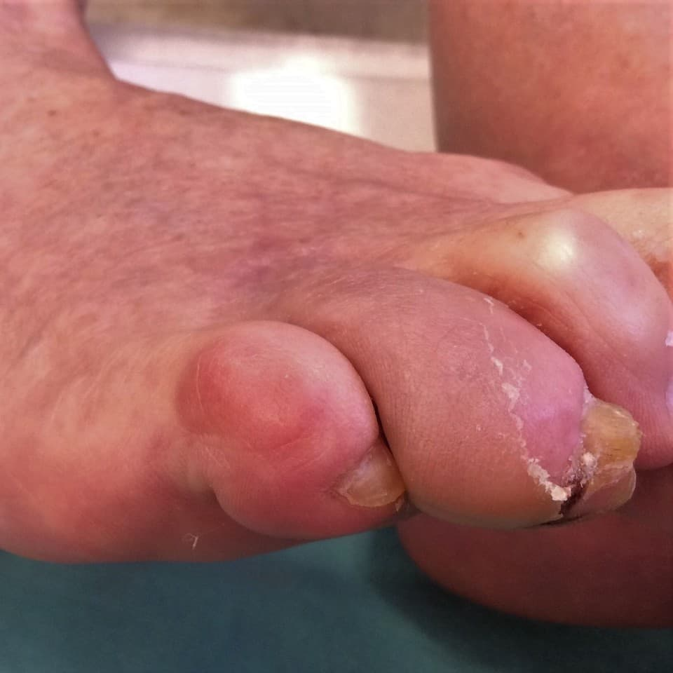 Cukorbeteg jobb láb V. ujján gyulladás, a IV. ujjon gyulladás, hámlás, a körömlemez mellett bevérzés.