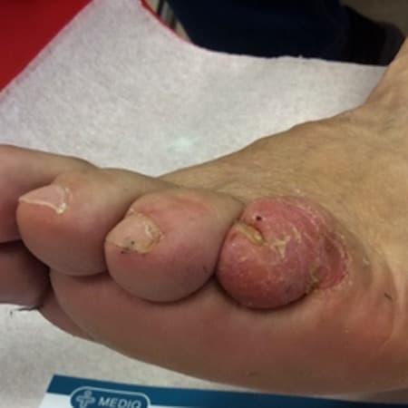 A bal láb V. ujján a bőr gyulladásos, hámló elváltozás.