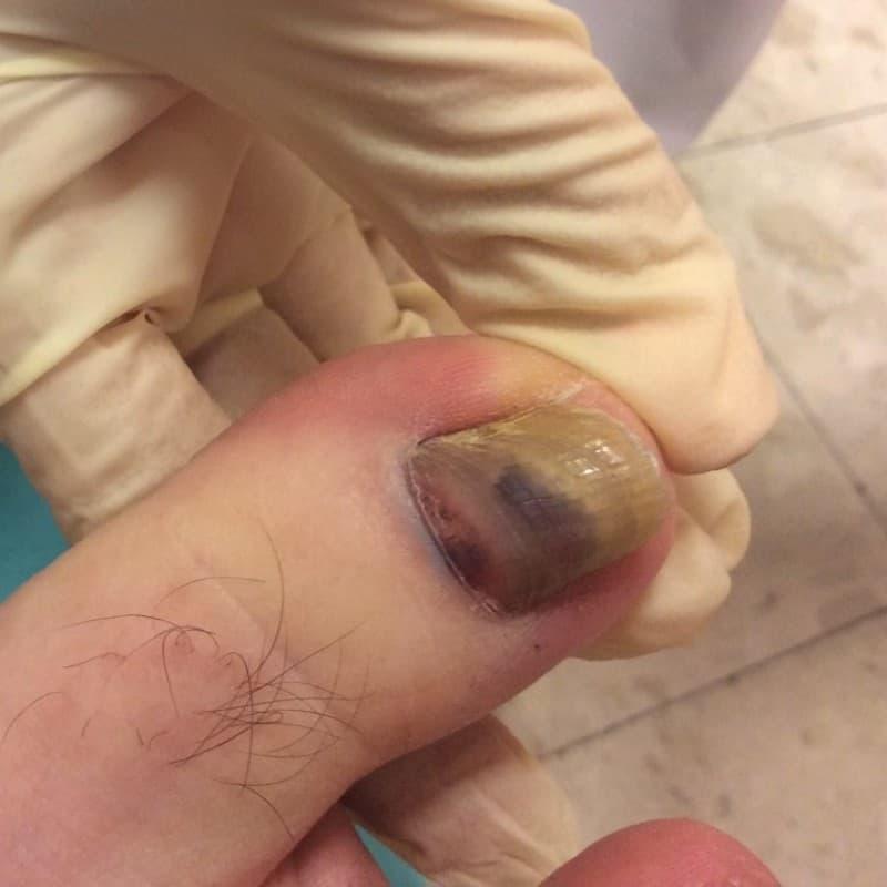 A jobb láb I. ujján a körömlemez megvastagodott, a körömlemez alatt vérzés nyomai.