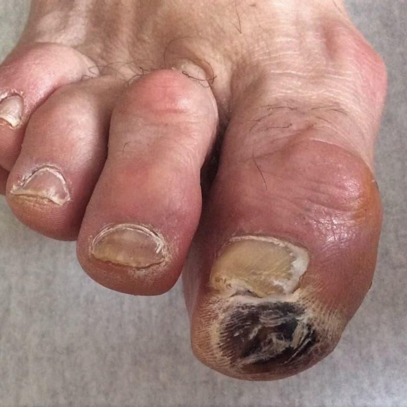 A jobb láb I. ujjának utolsó percén bevérzett, fekete varral fedett kóros nyomáspont van.
