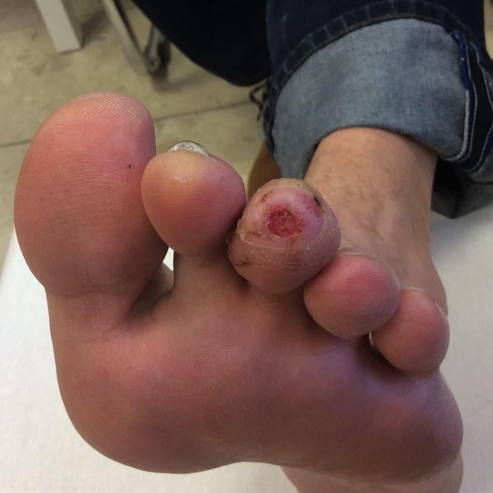 Cukorbeteg láb, a III. lábujj talpi felszínén kóros nyomáspont (neuropátia) helyén seb látható.