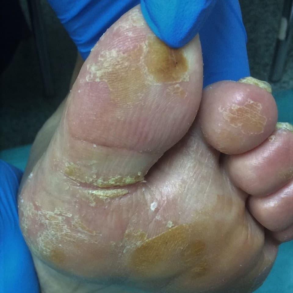 A bal láb talpán kóros nyomáspontok következtében bőrkeményedések alakultak ki, az I. ujj tövében mély berepedés.